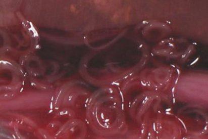 Primeros casos de anisakis tras consumir pescado congelado