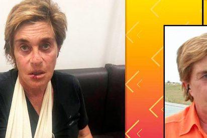 Chelo Gª Cortes queda hecha un 'Ecce Homo' tras caer de bruces al suelo