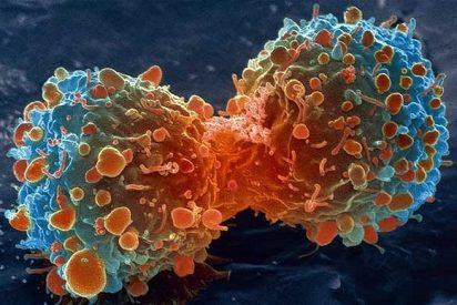Crean un algoritmo capaz de rastrear la diseminación de las células cancerosas por el cuerpo