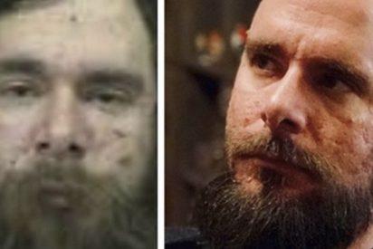 Este ex drogadicto publica cómo ha cambiado en dos años sin drogas y su post se viraliza