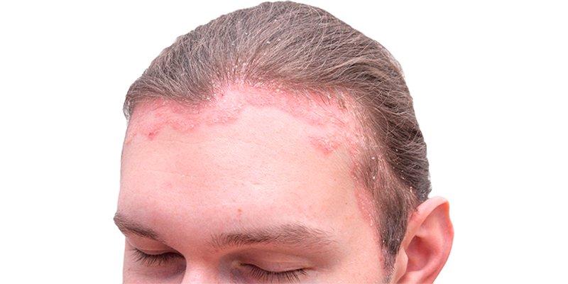 Psoriasis en el cuero cabelludo