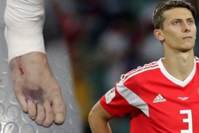 Así quedó el pie de este jugador ruso tras el partido contra Croacia