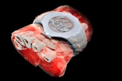 Revelan los primeros rayos X en color y 3D gracias a tecnología de partículas