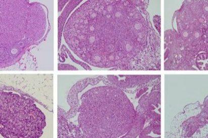 La foliculoscopia virtual permite distinguir entre folículos y quistes ováricos