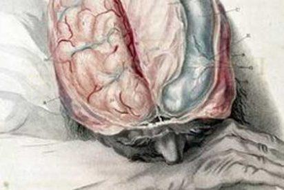 Sugieren que el Parkinson puede ser una enfermedad autoinmune