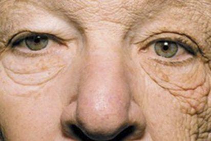 Esta cara le convencerá de que siempre hay que ponerse crema solar