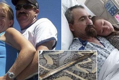 Este hombre sobrevive después de que le atravesara una espiga metálica de 20 kilos