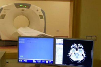 Los TAC pueden aumentar el riesgo de cáncer cerebral