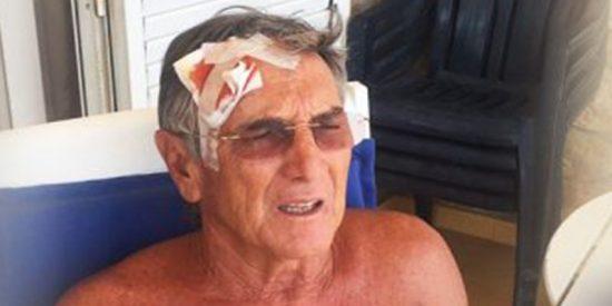 Valencia: Así dejaron los 'pacíficos' indepes a este anciano que les recrimino una pancarta de apoyo a los golpistas catalanes