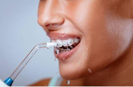 ¿Qué irrigador dental elegir?