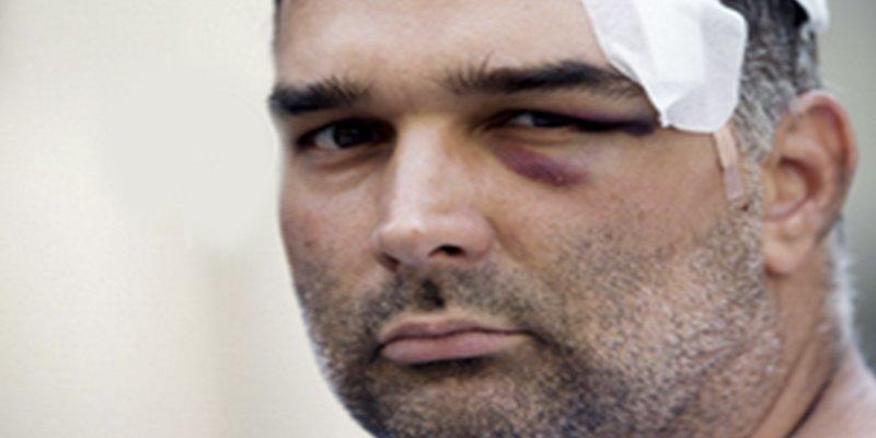 """José Bravo, el turista estadounidense atacado por los manteros: """"Creí que me iban a asesinar"""""""