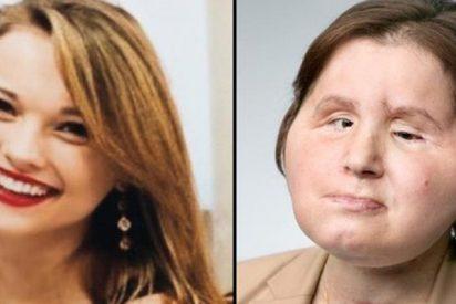 Un trasplante de rostro le dio una segunda oportunidad a esta joven que intentó suicidarse