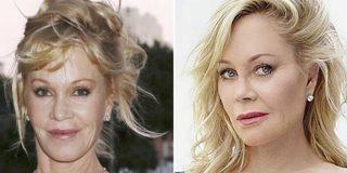 Cirugía estética: Estrellas de Hollywood que se desfiguraron obsesionadas por parar el reloj