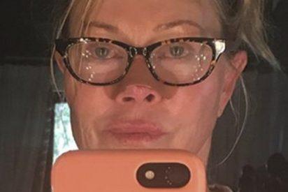 Melanie Griffith enseña el efecto del cáncer de piel en su propia nariz