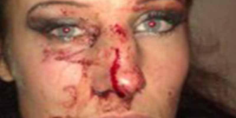 Cataluña: Un facineroso independentista rompe la nariz a una mujer por quitar lazos amarillos