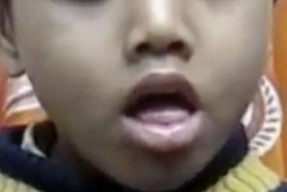 Este niño se traga un silbato y ahora tose así…
