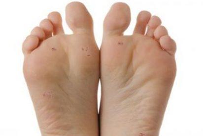 Advierten de cómo se deben extremar los cuidados de los pies en la práctica de deportes de verano