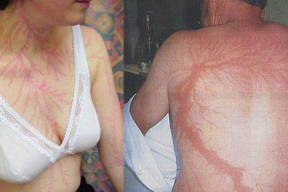 Esto es lo que queda marcado para siempre en tu piel cuando te impacta un rayo y sobrevives