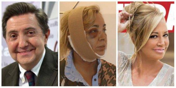 El Losantos más 'rosa' se troncha de la chapuza facial de la hermana de Terelu Campos