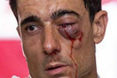 El terrible pitonazo a Paco Ureña en Albacete que le puede dejar tuerto del ojo izquierdo