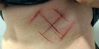 La Policia de Brasil acusa de cumunicación de falso crimen a la joven con la esvástica grabada en su cuerpo