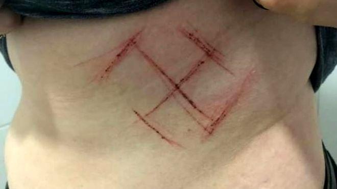 La salvaje violencia política de Brasil: dibujan una esvástica con una navaja en la piel de una mujer