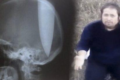"""Este hombre se clavó un cuchillo de 20 centímetros en la cabeza para """"poder respirar"""""""