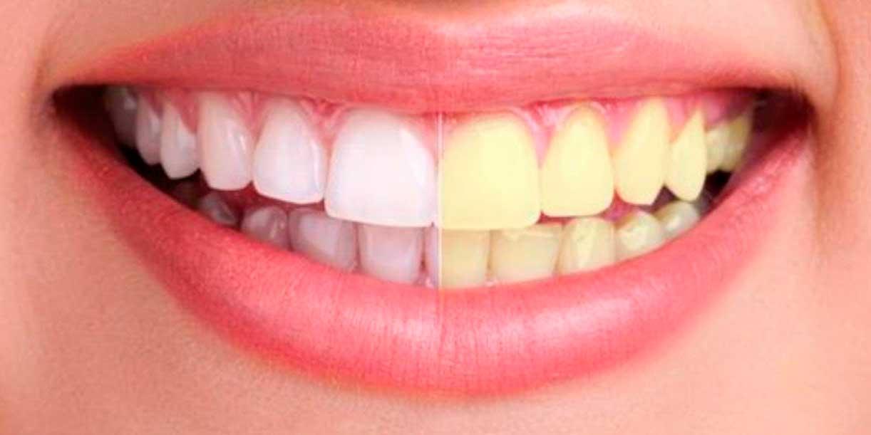 Los dientes no se blanquean, se aclaran