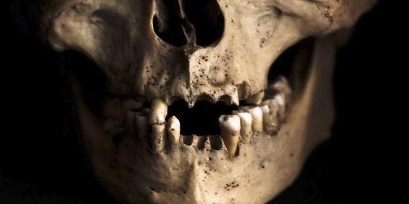 Unos obreros encuentran 1.000 dientes humanos dentro de una pared