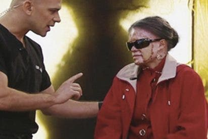 Así es la dramática historia de esta mujer que teme quemarse viva si le da la luz del Sol