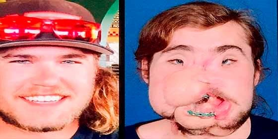 El impresionante trasplante de cara que cambió la vida de un joven que intentó suicidarse