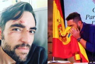 """El mensaje de Dani Mateo a los españoles: """"Tienen el sentido del humor en el puto culo"""""""