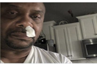 Este hombre 'moqueaba' sin cesar, pensó que sería una alergia, pero era una fuga de líquido cerebral