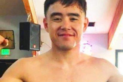 Este luchador sigue peleando con un hueso fuera y gana su combate de la MMA