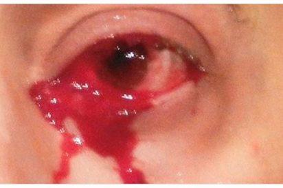 ¡Increíble!llora lágrimas de sangre y deja estupefactos a los médicos