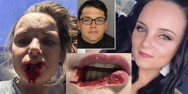 Mandan 12 años a prisión al desalmado que arrancó de un mordisco el labio a su ex novia