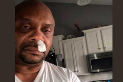 Le goteaba la nariz y no era un resfriado ni alergia: resultó ser líquido cefalorraquídeo