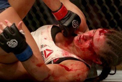 El sangriento knockout de la luchadora más prometedora de la UFC