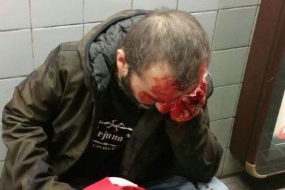 La condena de Rufián al hombre que casi matan los CDR por llevar una bandera española