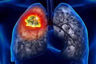 Muere de cáncer una mujer tras recibir un trasplante de pulmones de una fumadora