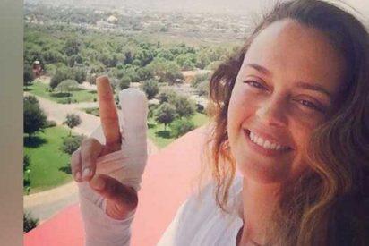 Se resolvió el misterio sobre cómo Shaila Dúrcal se produjo la amputación parcial de un dedo