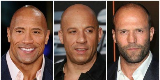 ¡Atención calvos!: Este nuevo método para revertir la alopecia funciona