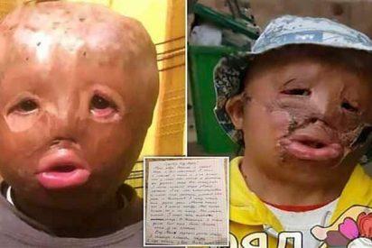 """Tiene 5 años, sobrevivió al incendio de su casa y pide a Papá Noel una nueva cara para que la gente """"no le tenga miedo"""""""
