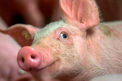 ¡Todo listo para el primer trasplante de piel de cerdo a un humano!