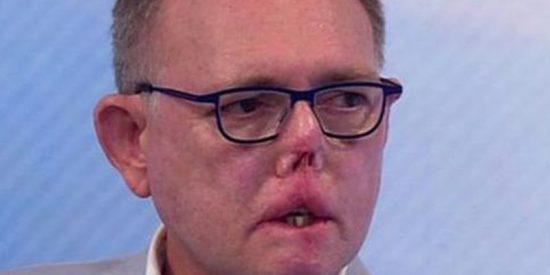 """""""Perdí las piernas, los dedos y parte de la cara por un arañazo y un lametón de mi perro"""""""