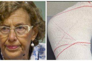 Carmena vuelve al hospital tras ser ingresada por una infección en el tobillo posterior a su operación