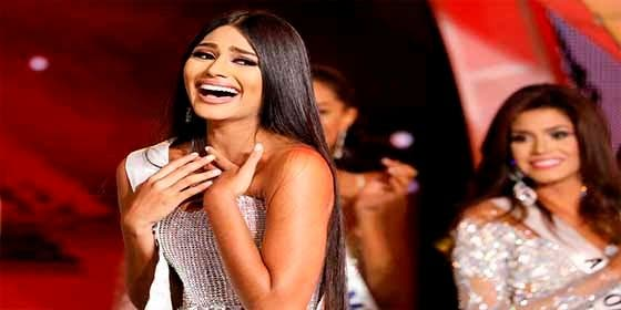 """Cirujano desvela el """"verdadero rostro"""" de la Miss Venezuela y rujen las redes: """"Era feísima"""""""