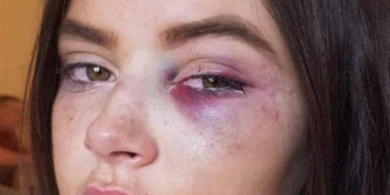 Esta adolescente víctima de bullying a la que dieron una brutal paliza se venga convirtiéndose en modelo