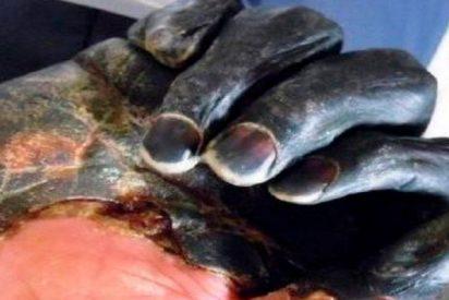 Un cadáver revela nuevos misterios en el caso de peste más antiguo de Europa