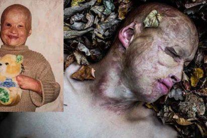 La escalofriante historia de Lyosha, el niño al que su padre tiró vivo dentro de un horno encendido